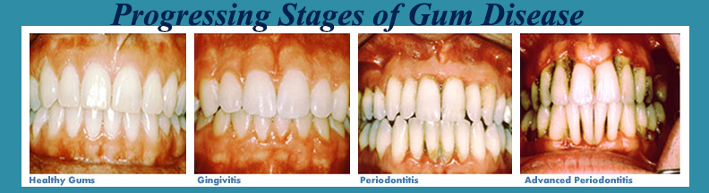 About Gum Disease - Cocoa Beach Dentist