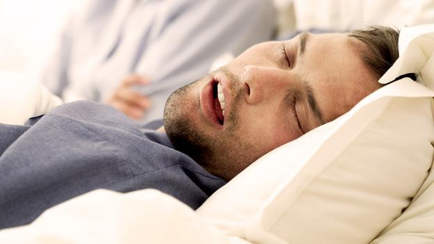 Obstructive-Sleep-Apnea - Cocoa Beach Dentist
