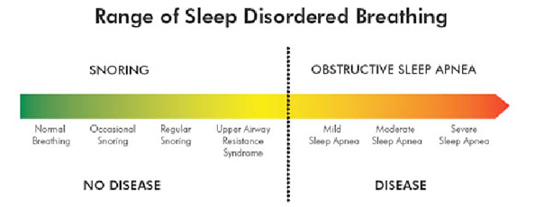 Sleep-Apnea---Vevera-Family-Dental