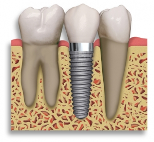 dental implants Cocoa Beach Dentist Vevera Family Dental