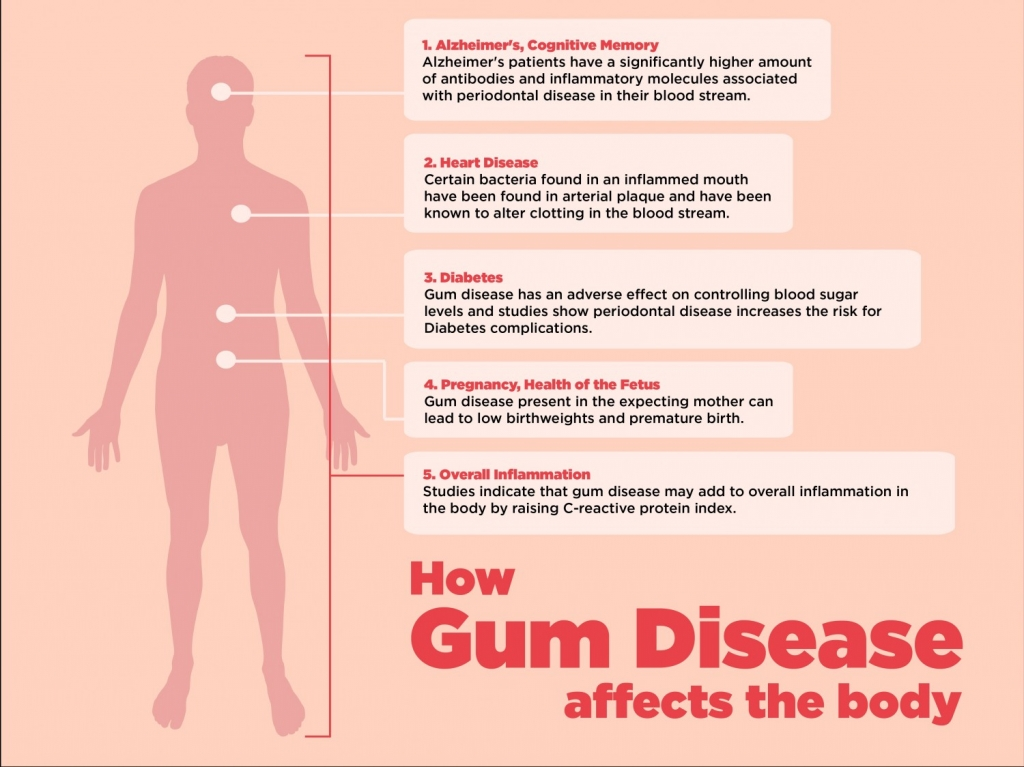 How Gum Disease Affects the Body - Periodontal Disease