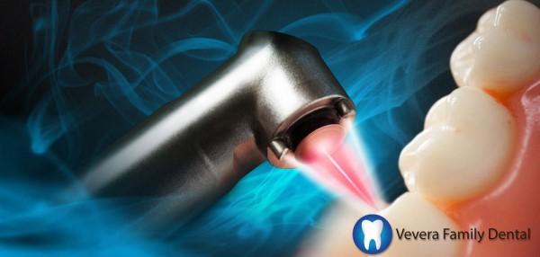 Laser Treatment Vevera Family Dental